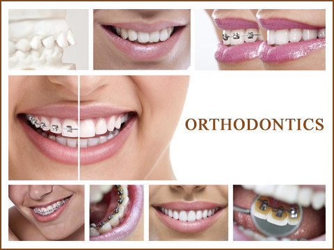 Orthodontic Functional Appliances